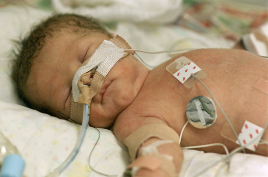 PHOTO: It�s World Prematurity Day, and efforts are under way in Florida to raise awareness about the frequency of prematurity, its consequences and the need for continued research. Photo credit: Northeast Florida Health Start Coalition