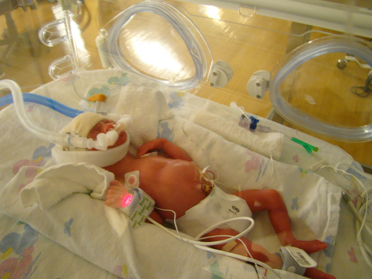 PHOTO: There's still more work to be done, but progress is being made in Minnesota in reducing the number of babies being born too soon. Photo credit: Joshua Smith/Flickr.