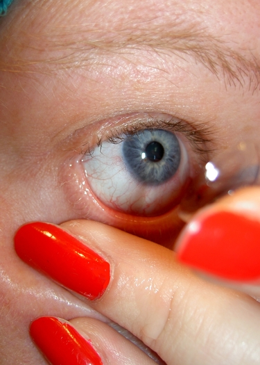 Contact lens wearers need good hygiene habits to avoid bacteria that can blind a person. Credit: J Durham/Morguefile