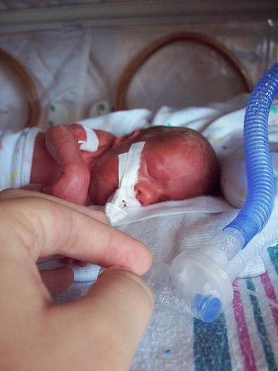 Research from Children's Mercy Hospital in Kanasas City and other facilities holds promise for extreme preterm infants. Credit: Chris Hall/Wikimedia Commons.