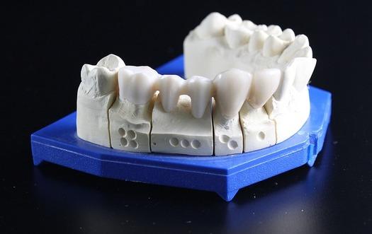 Muchos oregonianos pudieran no darse cuenta de que son elegibles para cobertura dental, desde la expansi�n de la Affordable Care Act. (dental-inno/Pixabay)