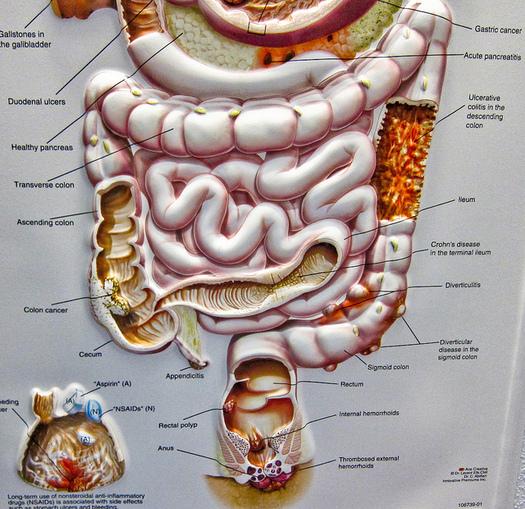 El c�ncer colorrectal es la segunda y tercera causa de muerte por c�ncer en hombres y mujeres, respectivamente. (Michael (a.k.a. moik) McCullough/Flickr)