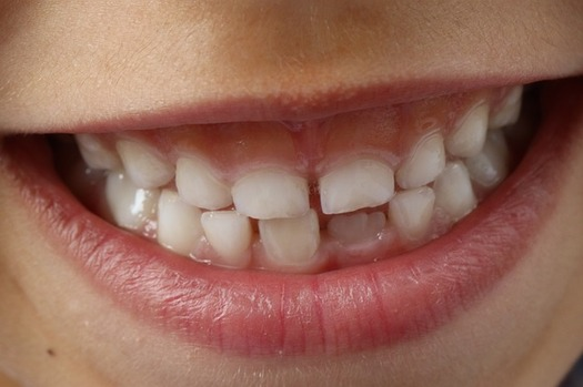 Good oral-health habits can decrease the incidence of cavities among children. (woodypino/Pixabay)