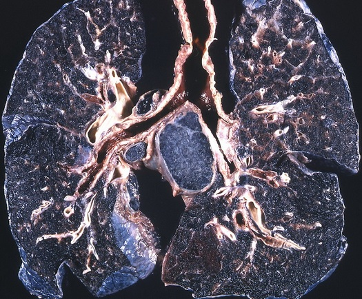 Black Lung is an incurable disease caused by breathing coal dust, which gets worse until a miner dies. (Yale Rosen/Fickr)
