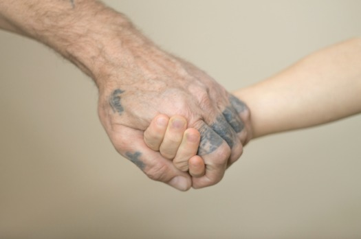 A patient gets his hand tattoo removed. (Adobe Stock)