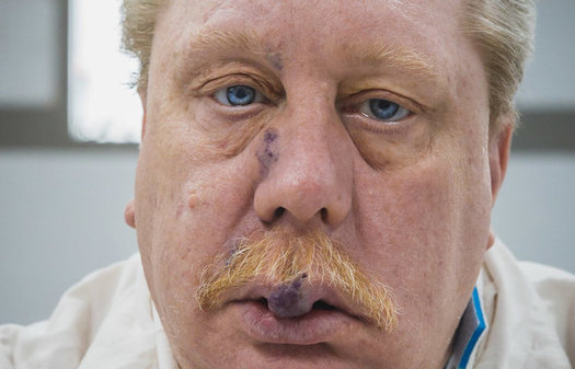 Attorneys for convicted murderer Rusty Bucklew are asking for clemency, claiming his tumors would burst during execution and amount to torture. (ACLU)