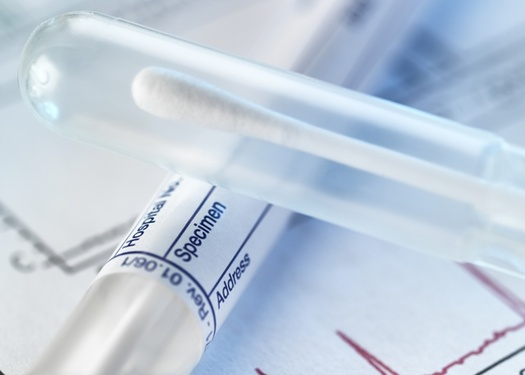 Processing rape kits can help bring justice for survivors and prevent future assaults, but thousands remain untested nationwide. (Adobe Stock)