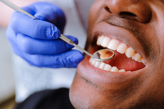 In a survey, three in 10 Mainers reported they have anxiety related to the condition of their mouth or teeth. (lisovoy/Adobe Stock)