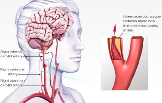 PHOTO: A diagram of an ischemic stroke. Courtesy of the American Heart Association of Minnesota.