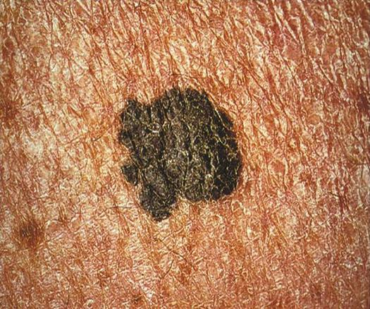 PHOTO: Melanoma is the most serious form of skin cancer. It takes the lives of around 140 Marylanders each year. May is Skin Cancer Awareness Month. Photo credit: Carl Washington, CDC.