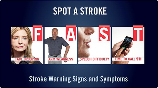 "GRAPHIC: The symptoms of a stroke can be easily remembered with the acronym ""FAST."" Image courtesy American Heart Association."