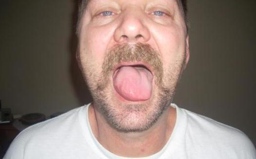 PHOTO: Randy Moyer's tongue is just one of many spots where he says he experiences unexplained pain and swelling after his exposure to fracking waste, made up of a mixture of water and toxic chemicals. Photo courtesy of Moyer.