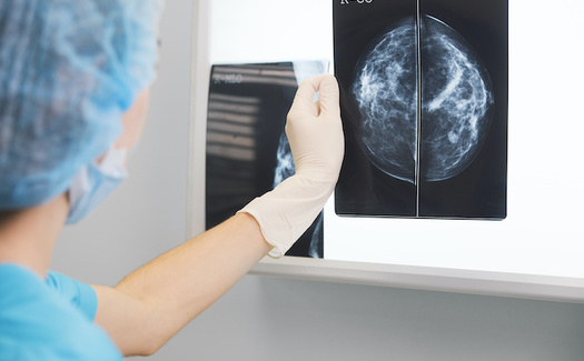 Millions of people have opted to put off their routine cancer screenings out of fear of exposure to COVID-19 at hospitals and doctors' offices. (Adobe Stock)