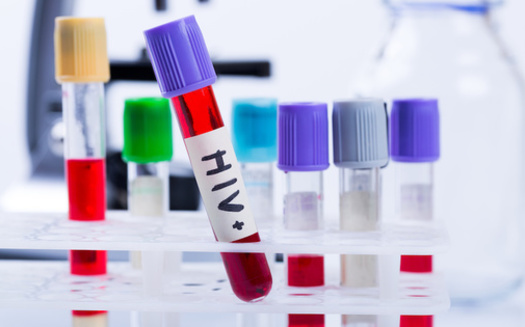Sunday, June 27, is National HIV Testing Day. Healthcare experts urge people who are sexually active to get tested for HIV once every three months to stay up-to-date on your status. (ronstik/Adobe Stock)