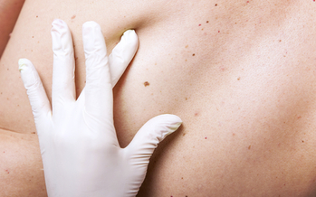 PHOTO: Melanoma, the deadliest form of skin cancer, kills an estimated 100 people in Utah each year, and preventing the disease is the goal of a national campaign today.
