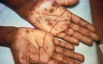 Rising numbers of new syphilis cases across New York has led to speculation about the causes for the outbreak. Credit: Centers for Disease Control and Prevention.