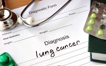 Lung cancer kills more than 400 people every day, according to the American Lung Association. (designer491/iStockPhoto)