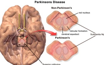 Scientists are close to understanding why some cells that send signals to the body controlling movement are destroyed, which will help in finding a cure for Parkinson's disease. (BruceBlaus/Wikimedia Commons)