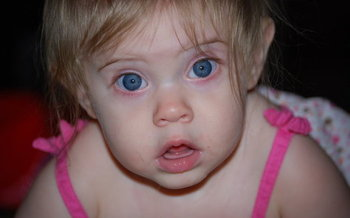 Experts say young children often don't realize they have a vision problem, so screenings are key.(Slowfoot/Morguefile)