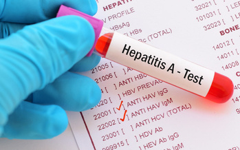 More than 4,000 cases of hepatitis-A have been reported in Kentucky since 2017. (Adobe Stock)